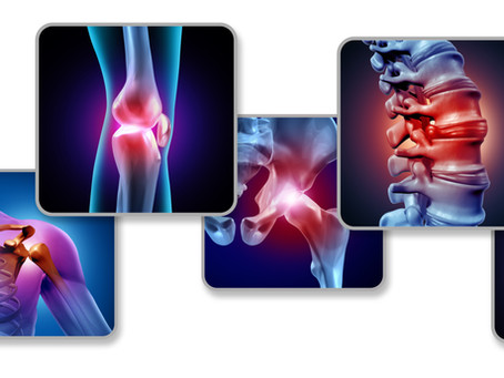 Orthobiologics for Accelerated Healing