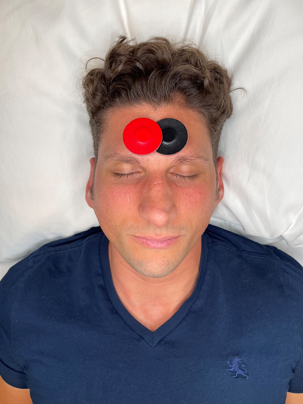 Magnet pair placement for frontal sinus