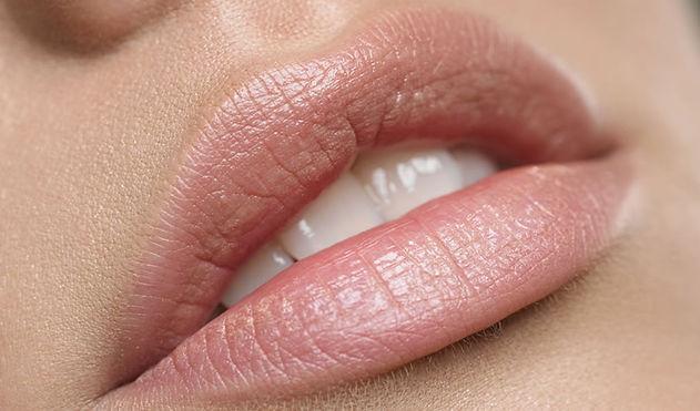Usta powiększone kwasem hialuronowym