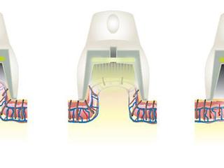Depilacja laserowa – wrażenia po pierwszym zabiegu