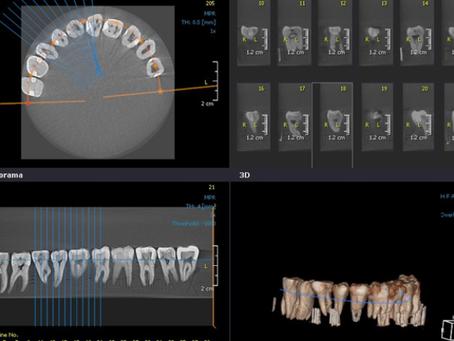 Tomografia Cone Beam na Odontologia