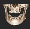 Tomografia Odontológica Atibaia Mairiporã