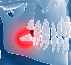 chirurgia-orale-1_edited.jpg