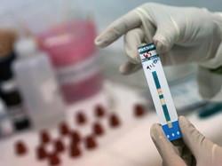 Обновлен перечень работников, кому нужно сдавать тесты на ВИЧ при устройстве на работу