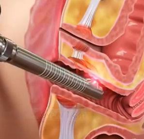 Fotona-Laser-Vaginal-Rejuvenation.jpg