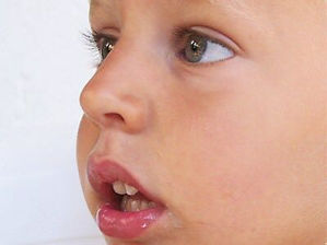 Respirador Oral