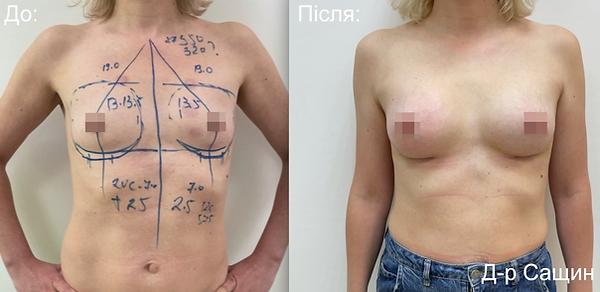 Маммопластика збільшення маммопластика грудей імплантами Сащин віктор Володимирович.png