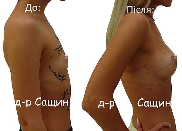 Збільшення грудей Сащин.jpg
