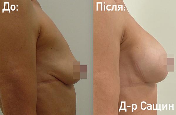 Естетичний хірург Сащин Віктор Володими