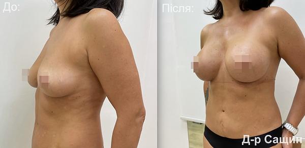 Маммопластика молочні залози збільшення грудей підтядка Сащин Віктор.png