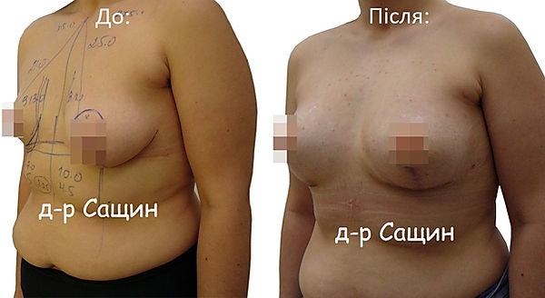 Збільшення молочних залоз Віктор Сащин.j