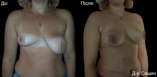 Віктор Сащин Доктор пластичний хірург маммопластика збільшення грудей асиметрія.png