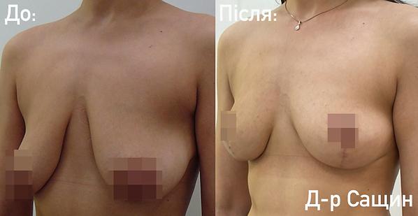 Сащин Віктор пластичний хірург маммопла