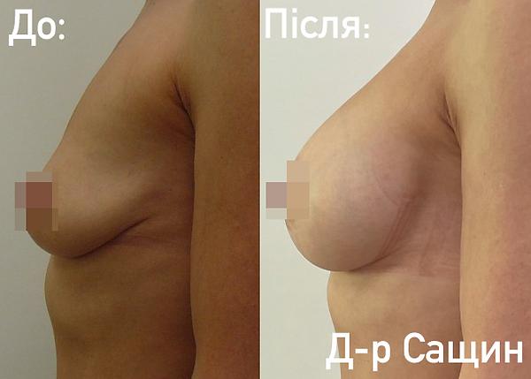 Естетичний хірург Віктор Сащин.png