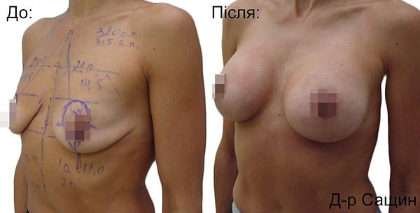 Збільшення маммопластика грудей Сащин Віктор.png