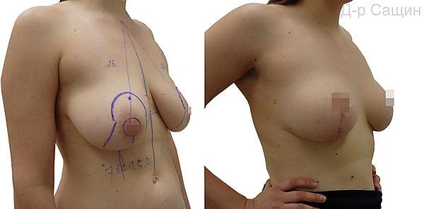 Збільшення розміру грудей Сащин.jpg