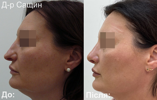 Доктор-хірург ринопластика операція ніс Віктор Сащин.png
