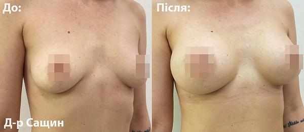 Доктор хірург естетики груди Сащин.png