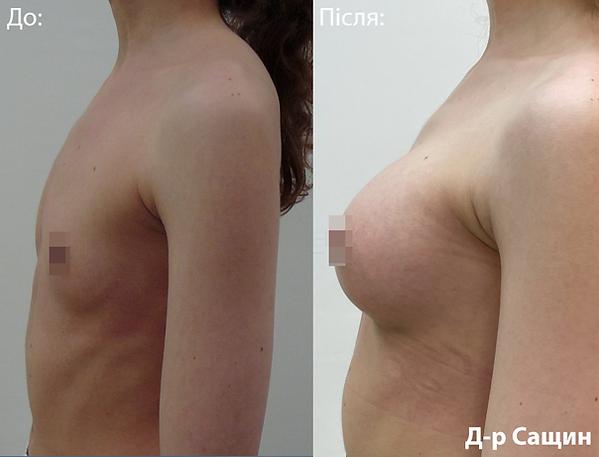 Маммопластика збілшення грудей доктор хі