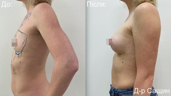 Маммопластика збільшення маммопластика грудей імплантами Сащин.png