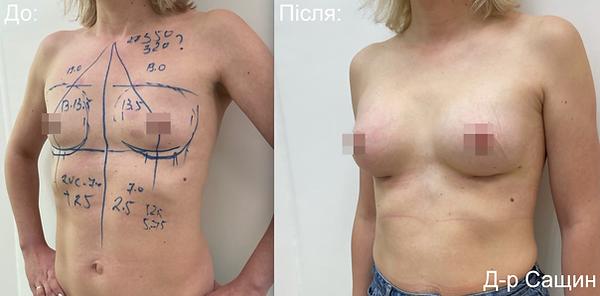 Маммопластика збільшення маммопластика грудей імплантами Сащин віктор.png