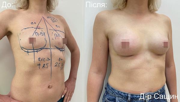 Маммопластика збільшення маммопластика грудей імплантами Віктор Сащин.png