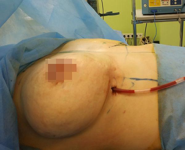 Доктор-пластичний хірург Сащин.jpg