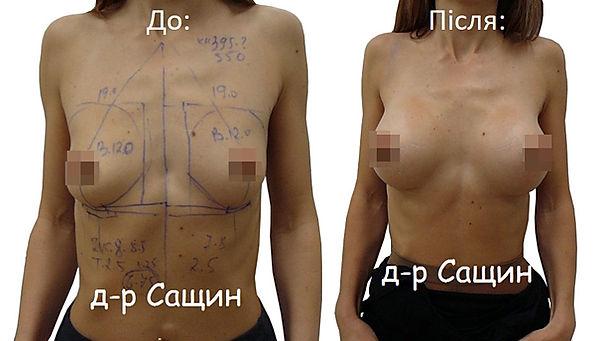 Збільшити груди Сащин Віктор Володимиров