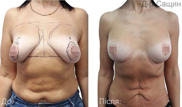 Скільки коштує збільшення грудей Сащин В