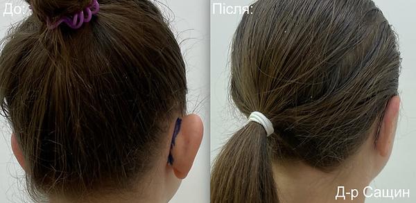 Доктор пластичний хірург пластика раковин вушних вух Віктор Сащин.png