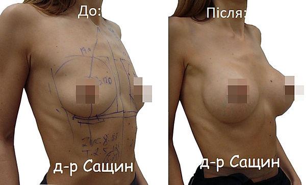 Збільшити груди Сащин.jpg