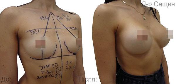 Сащин збільшити груди.jpg