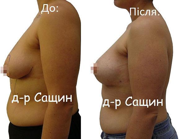 Збільшення молочних залоз Сащин Віктор.j