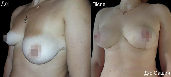 Сащин Віктор Доктор пластичний хірург маммопластика збільшення грудей асиметрія.png