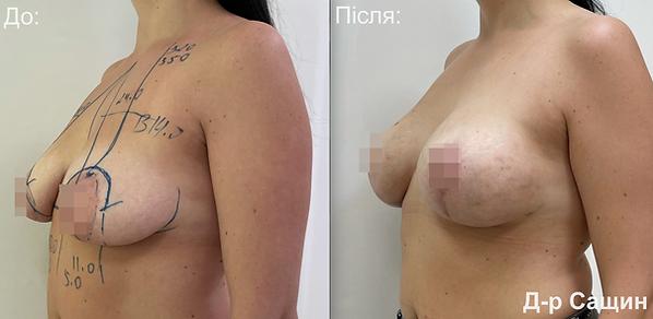 Доктор підтяжка грудей хірург пластична операція Віктор Сащин.png