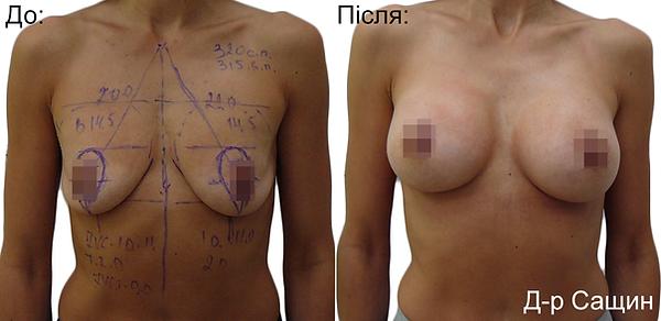 Збільшення маммопластика грудей Сащин Віктор Володимирович.png