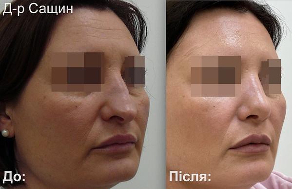 Доктор-хірург ринопластика операція ніс Сащин.png