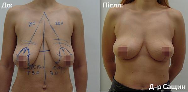 Хірург пластичний доктор збільшення груд
