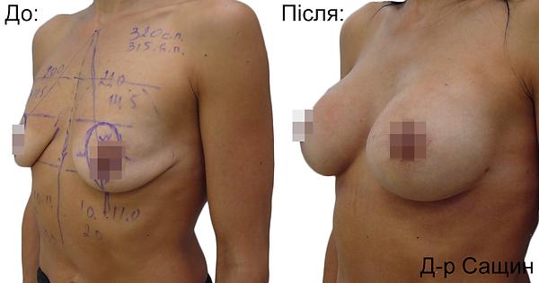 Збільшення маммопластика грудей Віктор Сащин.png