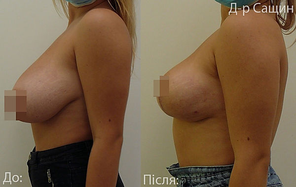 Сащин маммопластика операція.jpg