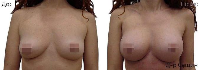 Операція по збільшенню грудей Сащин Вікт