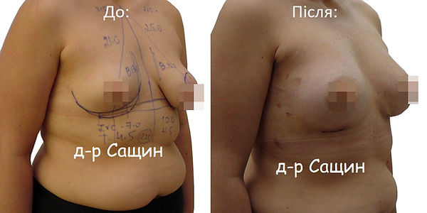 Збільшення молочних залоз Віктор Володим