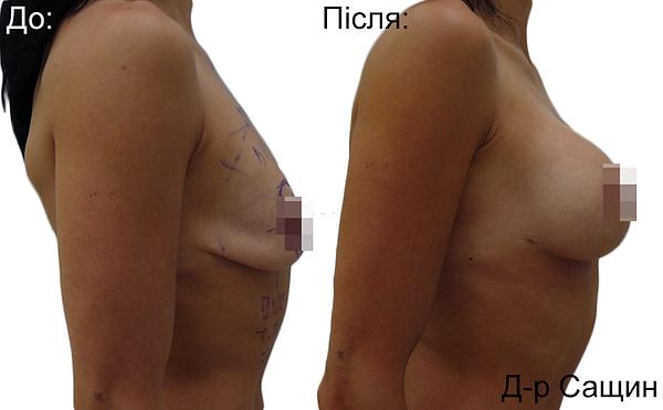 Збільшення маммопластика грудей Сащин.png
