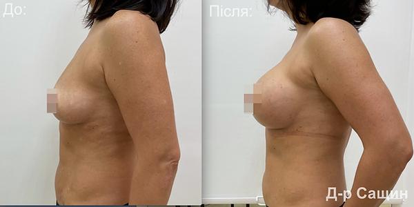 Маммопластика молочні залози збільшення грудей підтядка Віктор Сащин.png