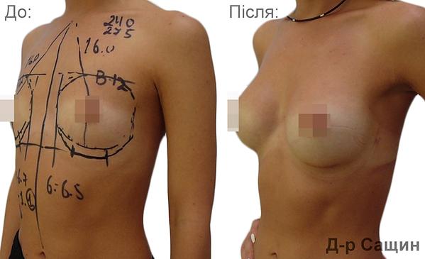 Маммопластика збільшення молочних грудей залоз імпланти жиром Сащин Віктор.png