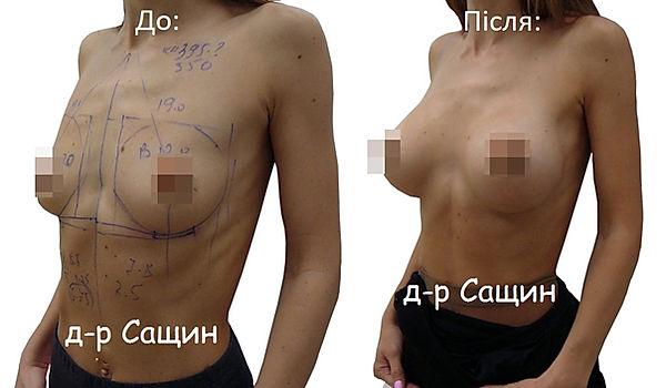 Збільшити груди Сащин Віктор.jpg