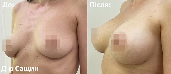 Доктор хірург естетики груди Сащин Вікто