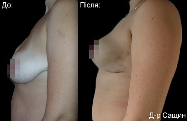 Сащин Доктор пластичний хірург маммопластика збільшення грудей асиметрія.png