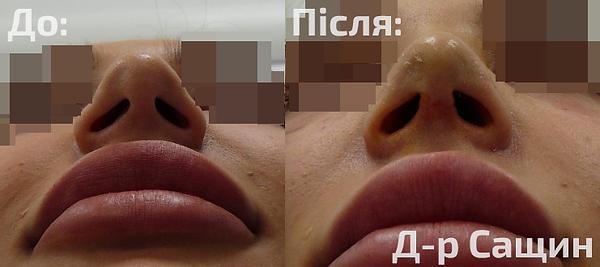 Доктор хірург пластичний Віктор Володими