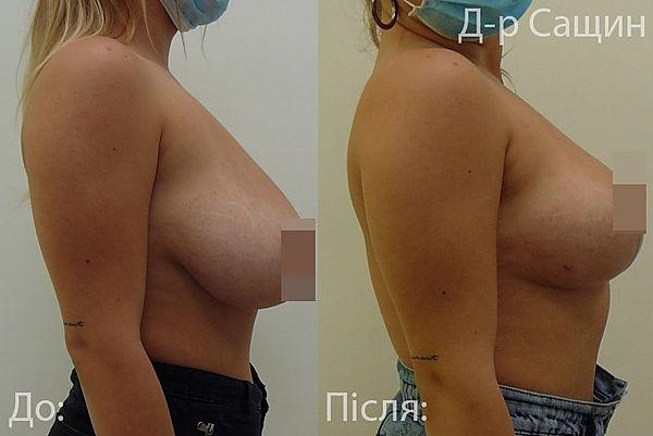 Віктор Сащин маммопластика операція.jpg